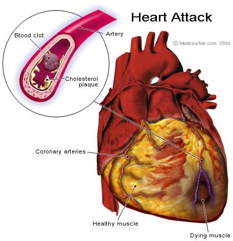 szívinfarktus jele